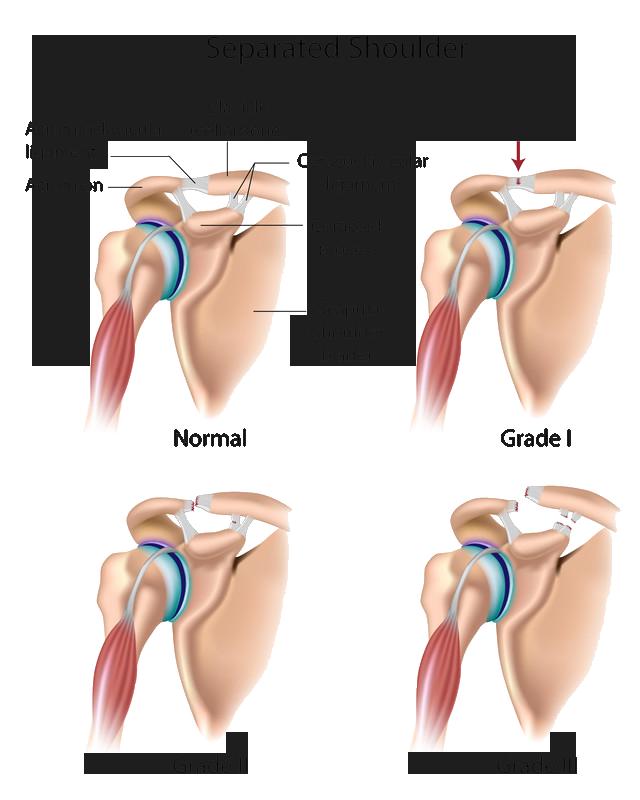 Shoulder Surgery | Templeton, CA | Dr William Sima, MD