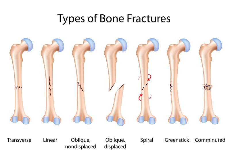 Broken Bones Dr William Sima