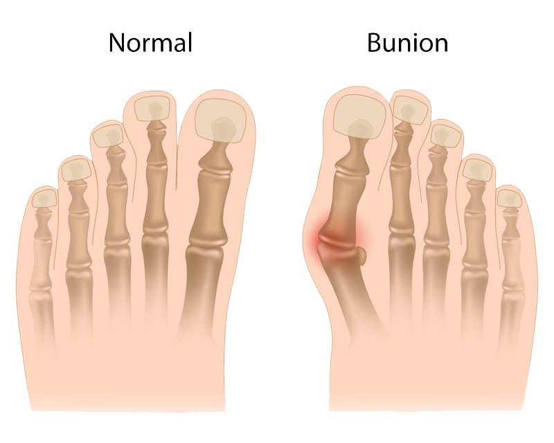 Ankle & Foot Injuries   Templeton   Dr William Sima, MD