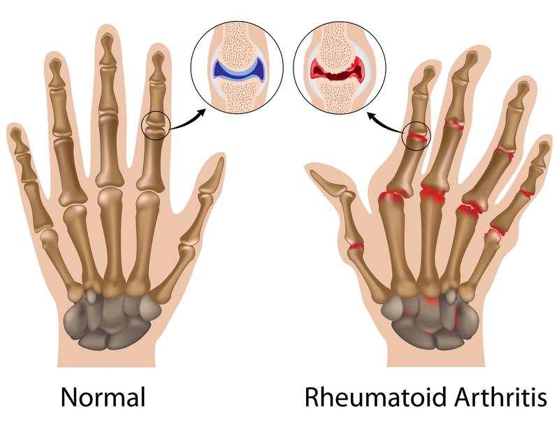 Arthritis in hands symptoms
